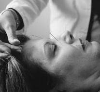 L'acupuncture : ce qu'il faut savoir