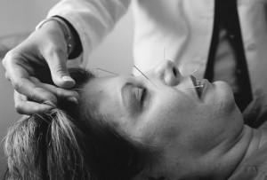 acupuncture du visage d'une femme