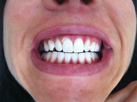 Tout sur le blanchissement dentaire