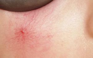 symptôme hépatite C